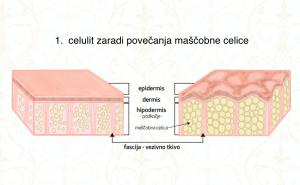 Celulit zaradi povečanja maščobne celice