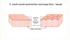 celulit zaradi spremembe fascije